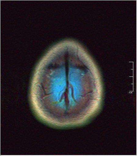 Brain MRI 0153 00.jpg