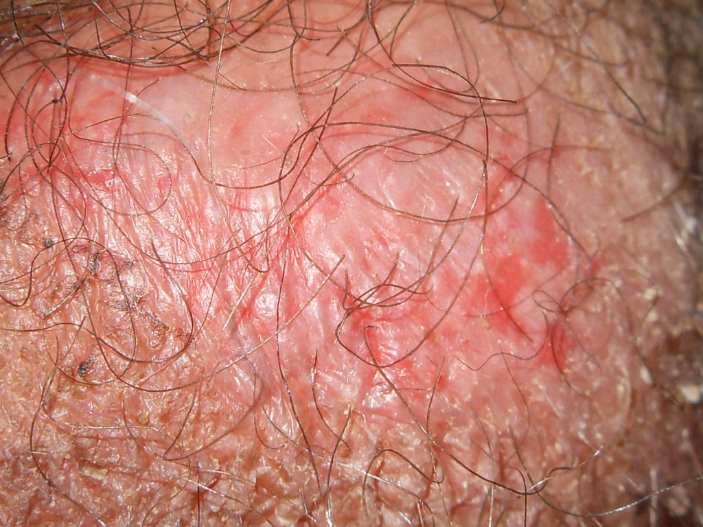 Genital psoriasis Symptoms, Diagnosis, Treatments and ...