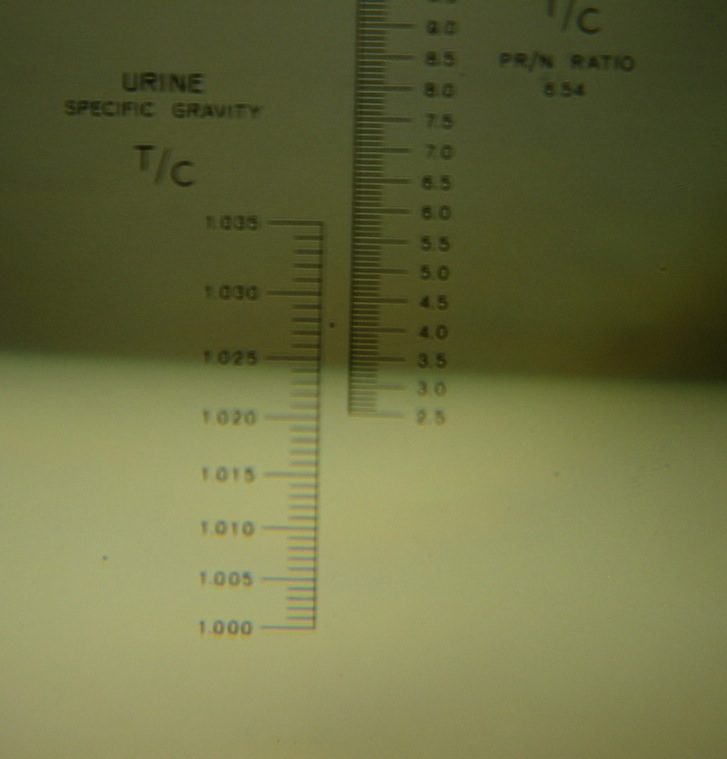 urine specific gravity - wikipedia, Skeleton