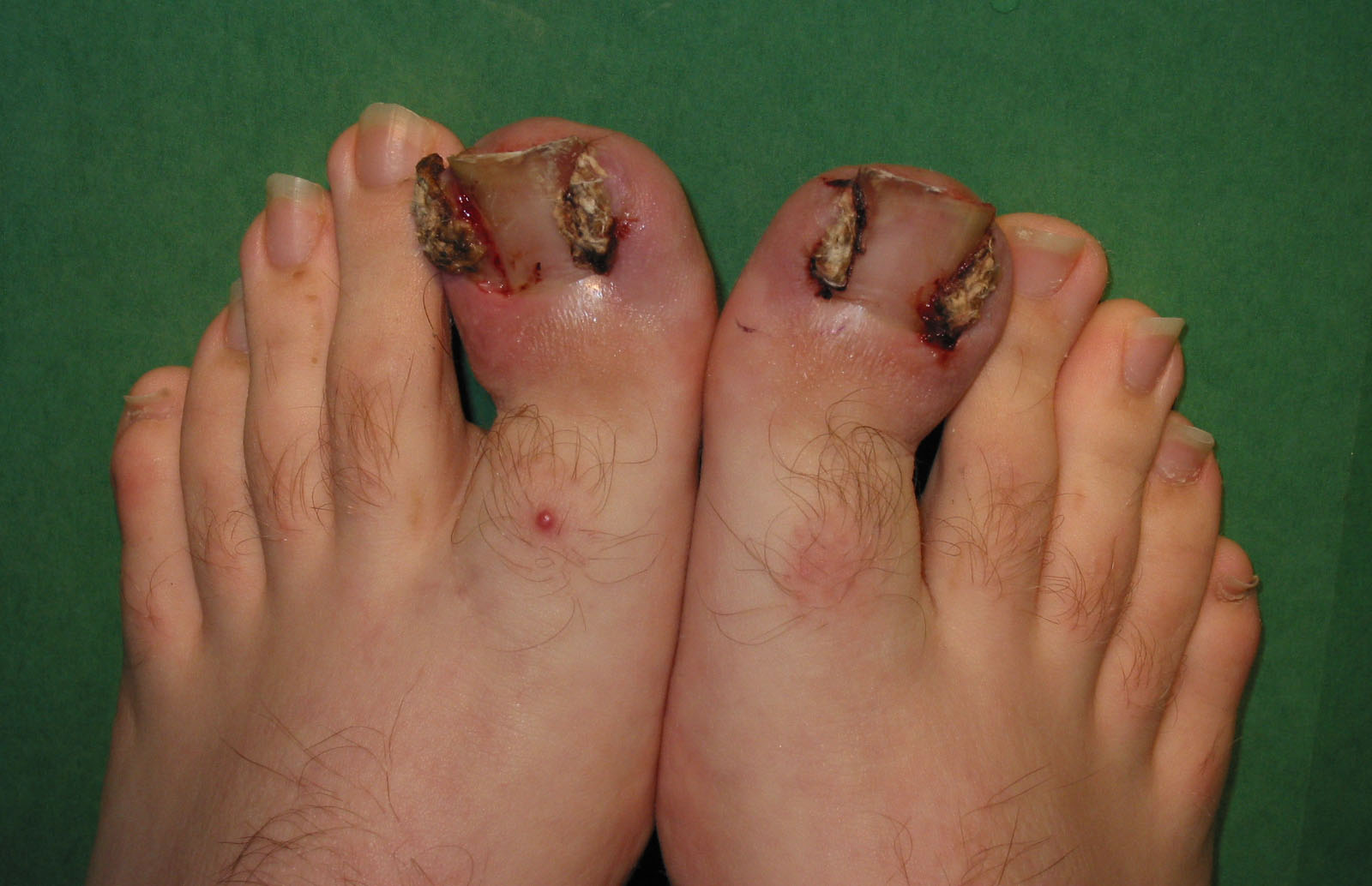 Surgical treatment of ingrown toenails - Wikiwand