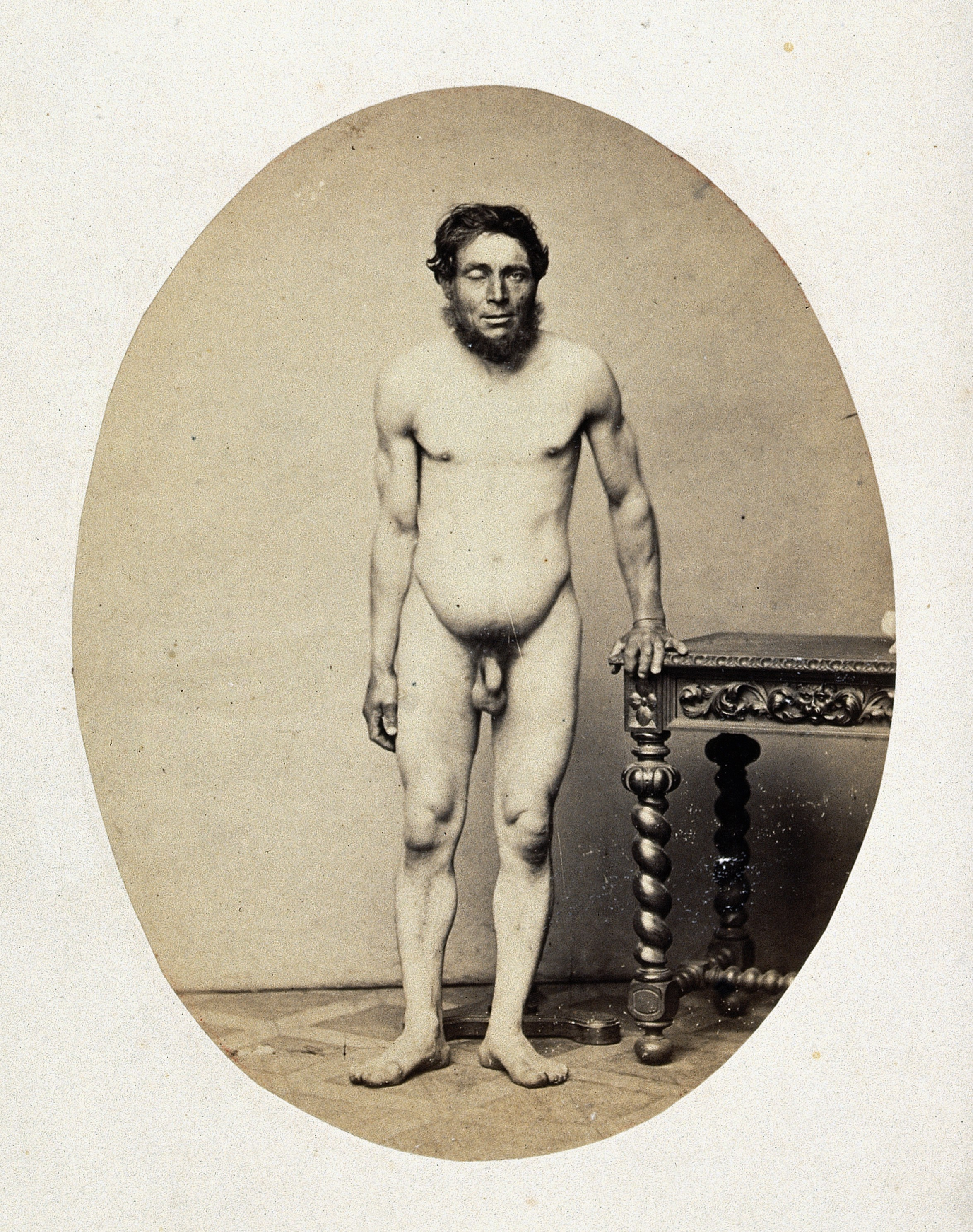 Naked Man Standing 64