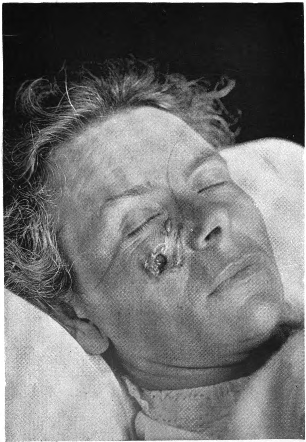 Pathology Outlines - Basal cell carcinoma (BCC)