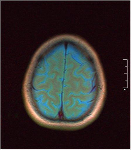 Brain MRI 0076 02.jpg