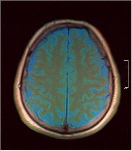 Brain MRI 0143 04.jpg