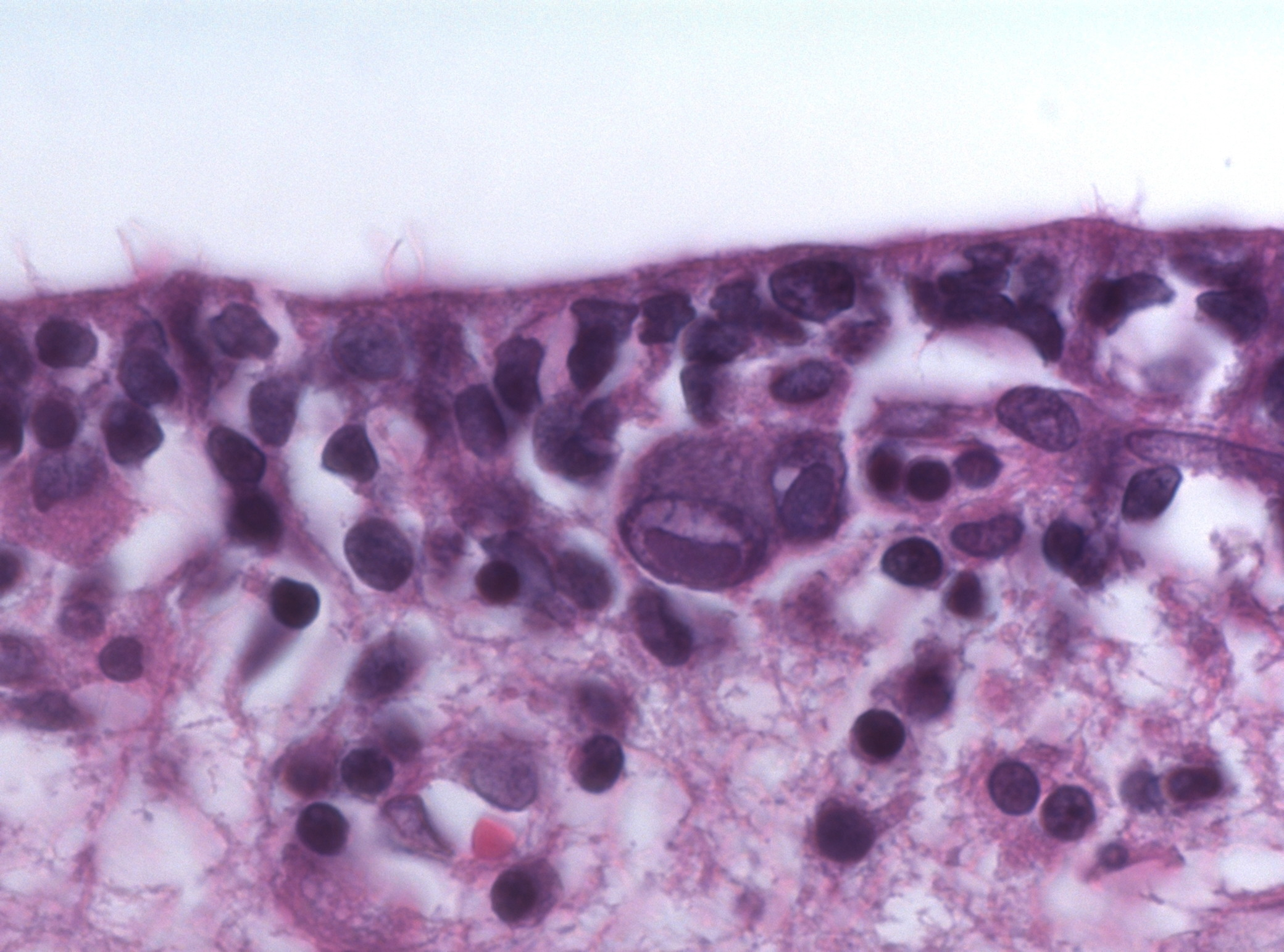 File:CMV encephalitis owl eye inclusions HE stain.jpg ... Owl Eye Inclusion