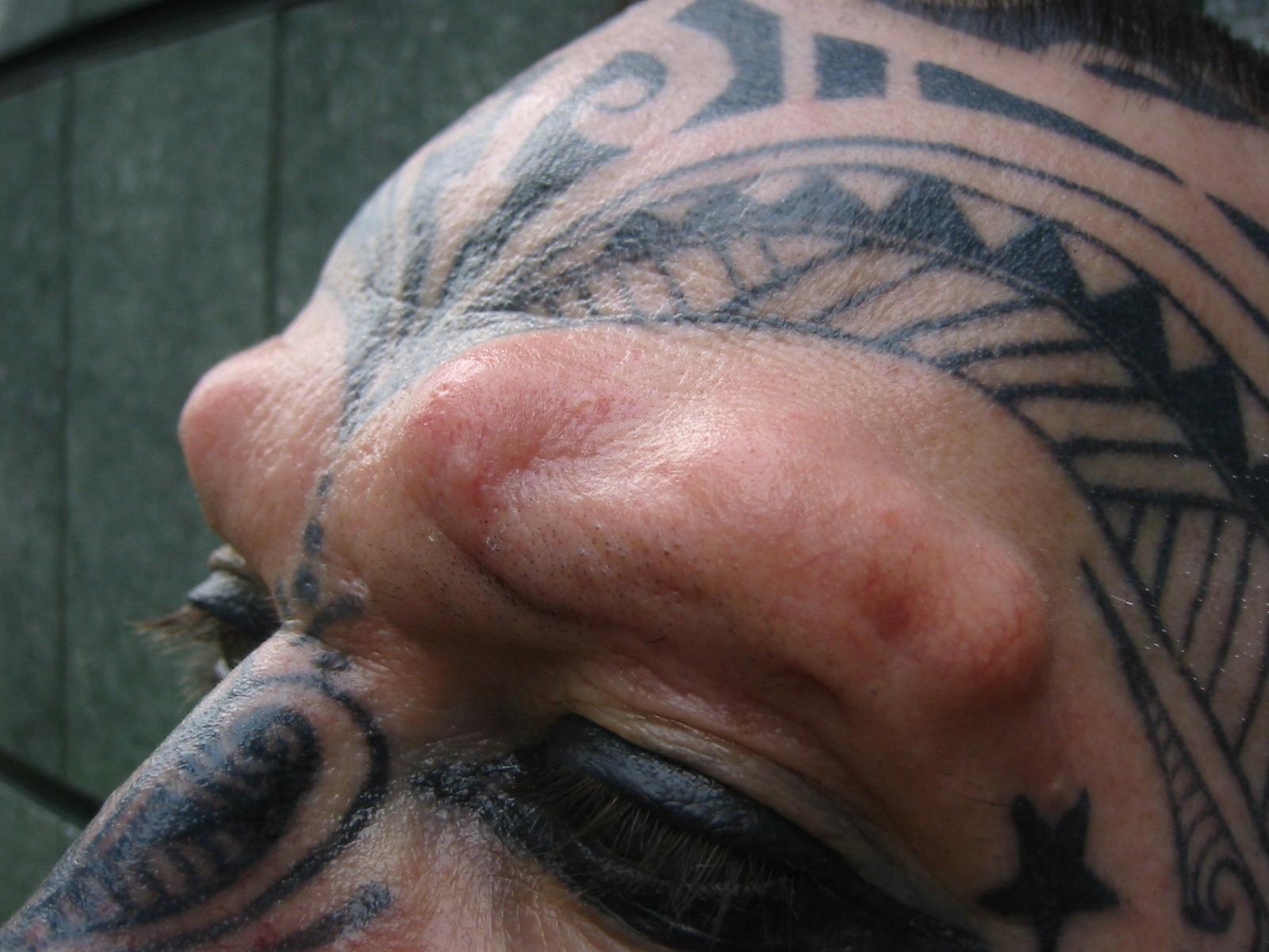 Subdermal Implant
