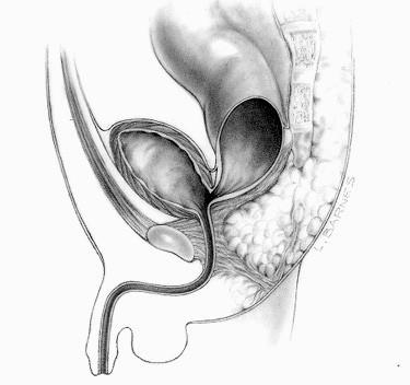 File Rectobladder Neck Fistula Jpg Wikimedia Commons