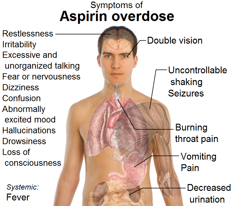 File:Symptoms of aspirin overdose.png - Wikimedia Commons