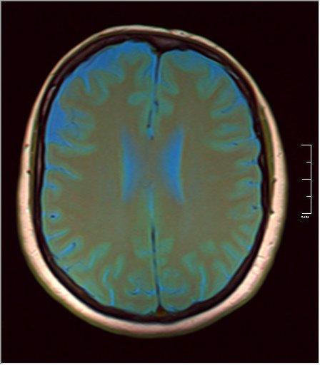 Brain MRI 0129 07.jpg