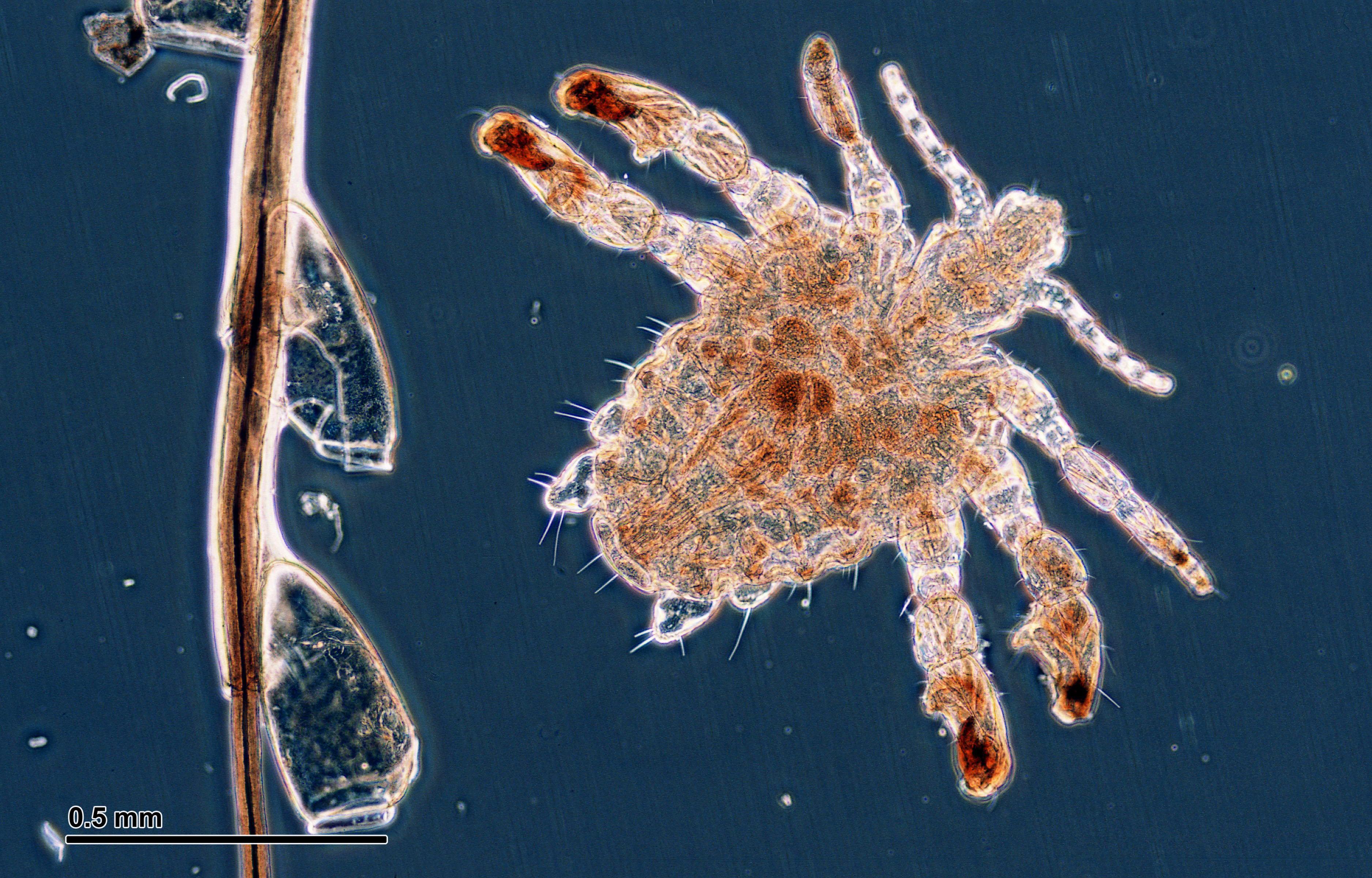 File:Crab louse (251 2...