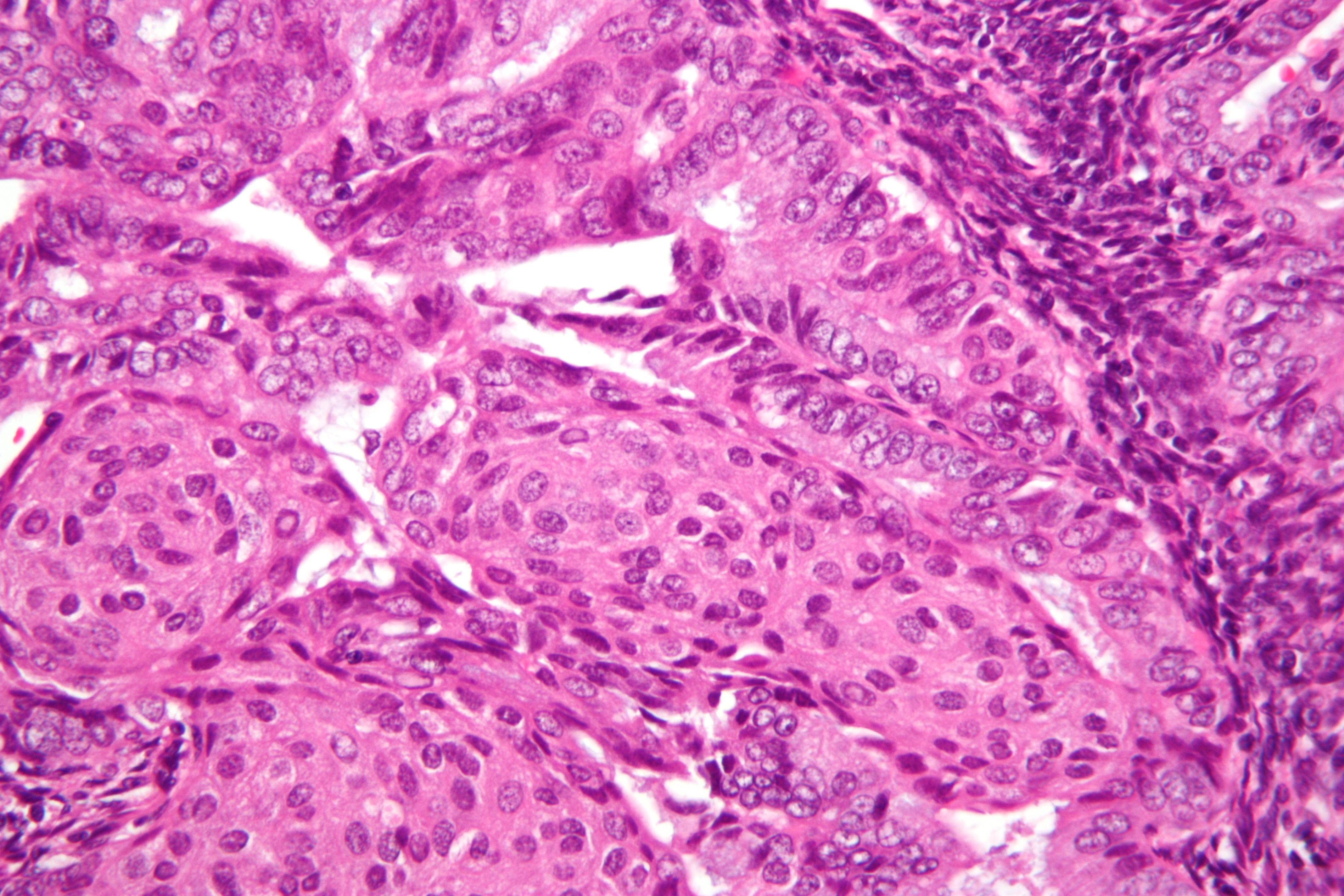 endometrial cance Câncer endometrial saltar para a navegação saltar para a pesquisa cancro do endométrio localização e desenvolvimento do.