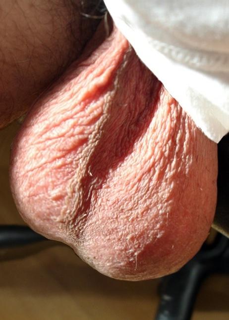 file male balls