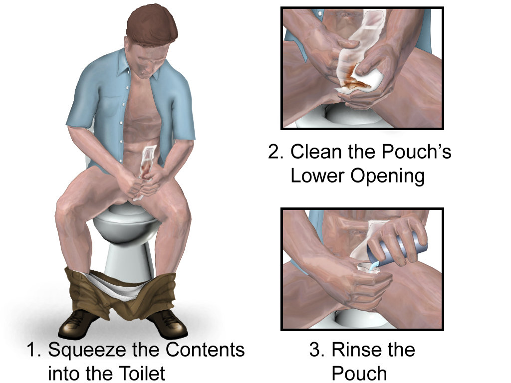 Ostomy Emptying Bag Png Wikimedia Commons