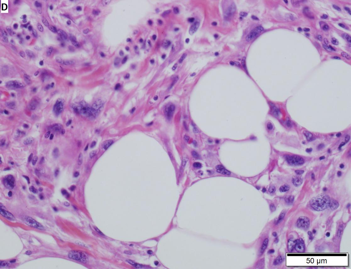 Pleomorphic sarcoma