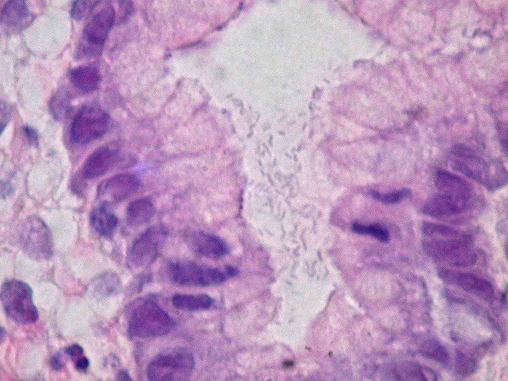 File helicobacter pylori gastric mucosa h e 390307642 jpg wikimedia commons - Bacterie helicobacter pylori ...