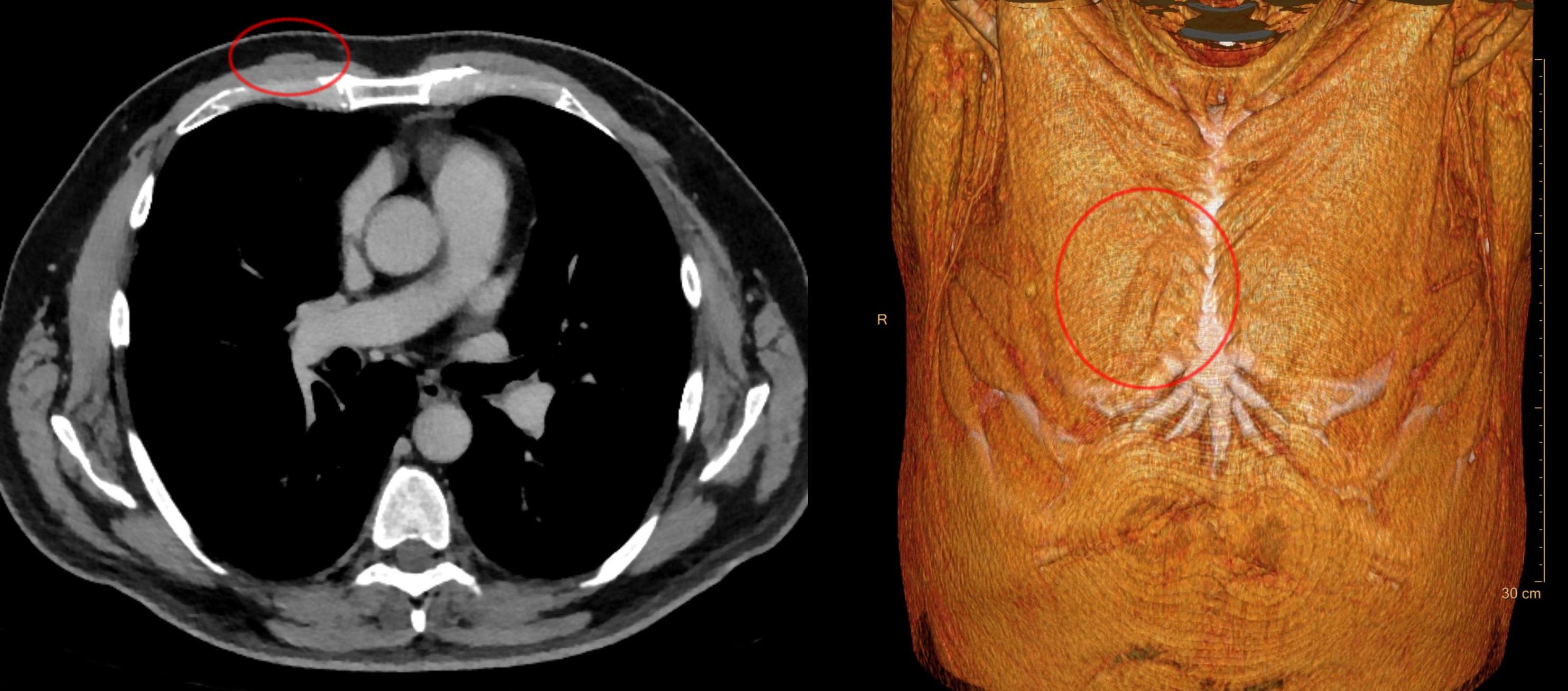 File:Musculus sternalis rechts - CT axial und Volume rendering - 001 ...