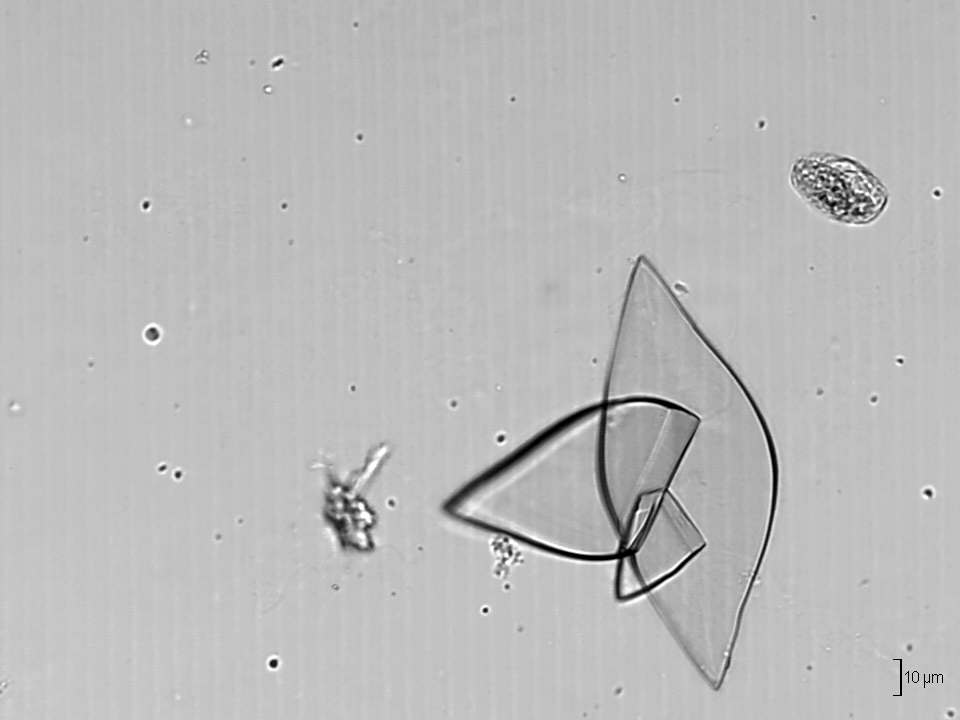 File Uric Acid Crystals Urine 220 Rik Asit Kristalleri