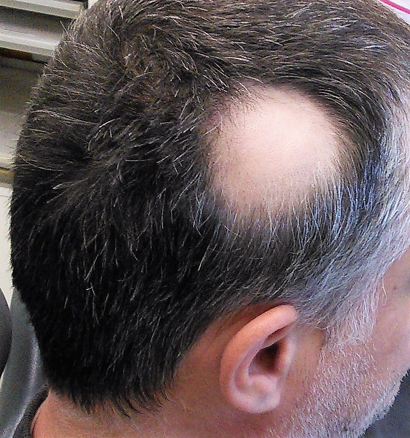 File:Alopecia areata 1.jpg - Wikimedia Commons