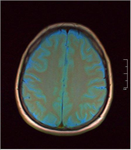 Brain MRI 0076 05.jpg