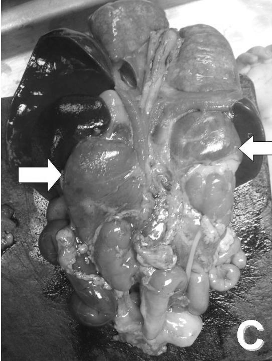 mellékvese hyperplasia