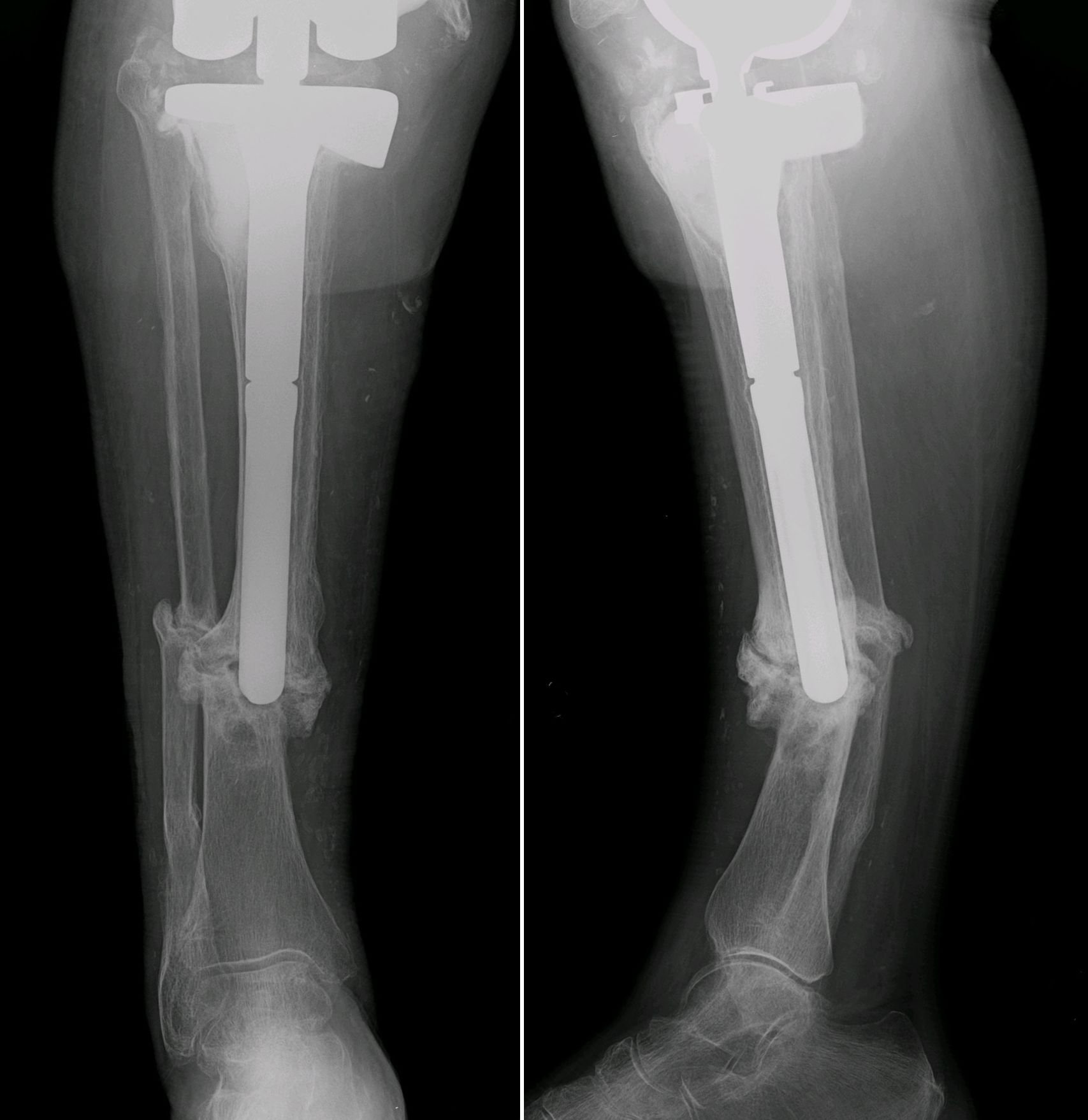 Fibular fixation as an adjuvant to tibial intramedullary nailing in the treatment of combined distal third tibia and fibula fractures: a biomechanical investigation