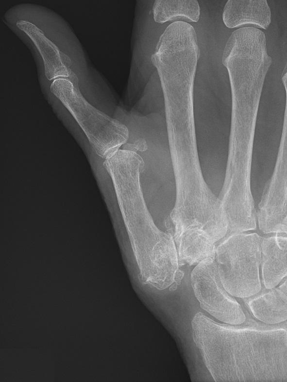 Trapeziometacarpal osteoarthritis - Wikipedia