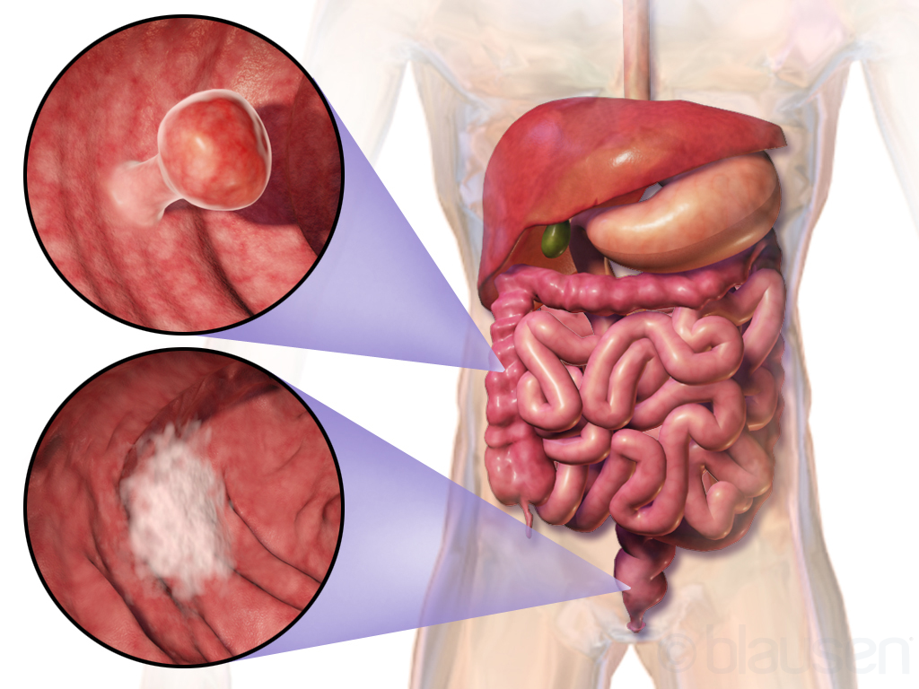 anal inconsistence and colon cancer