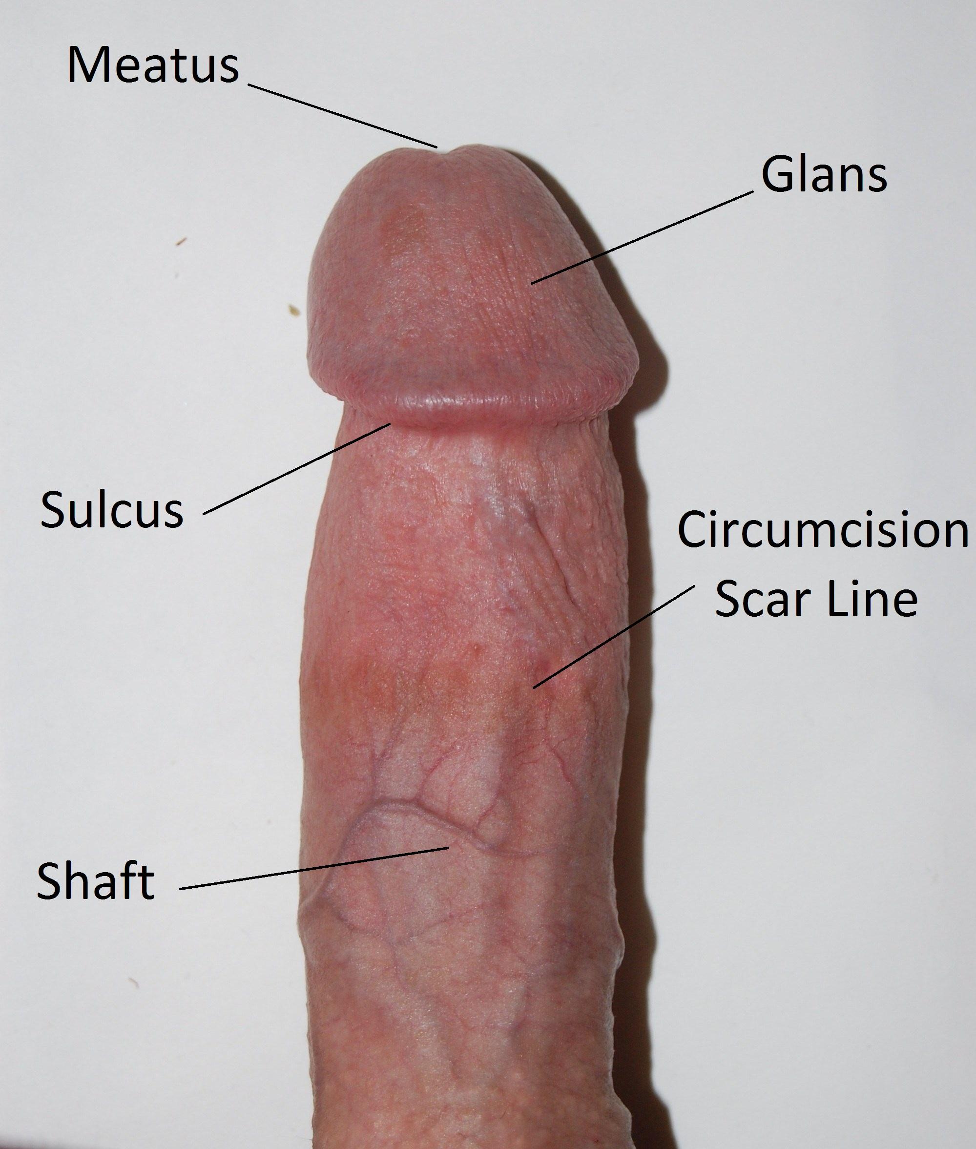 White Spots On Foreskin
