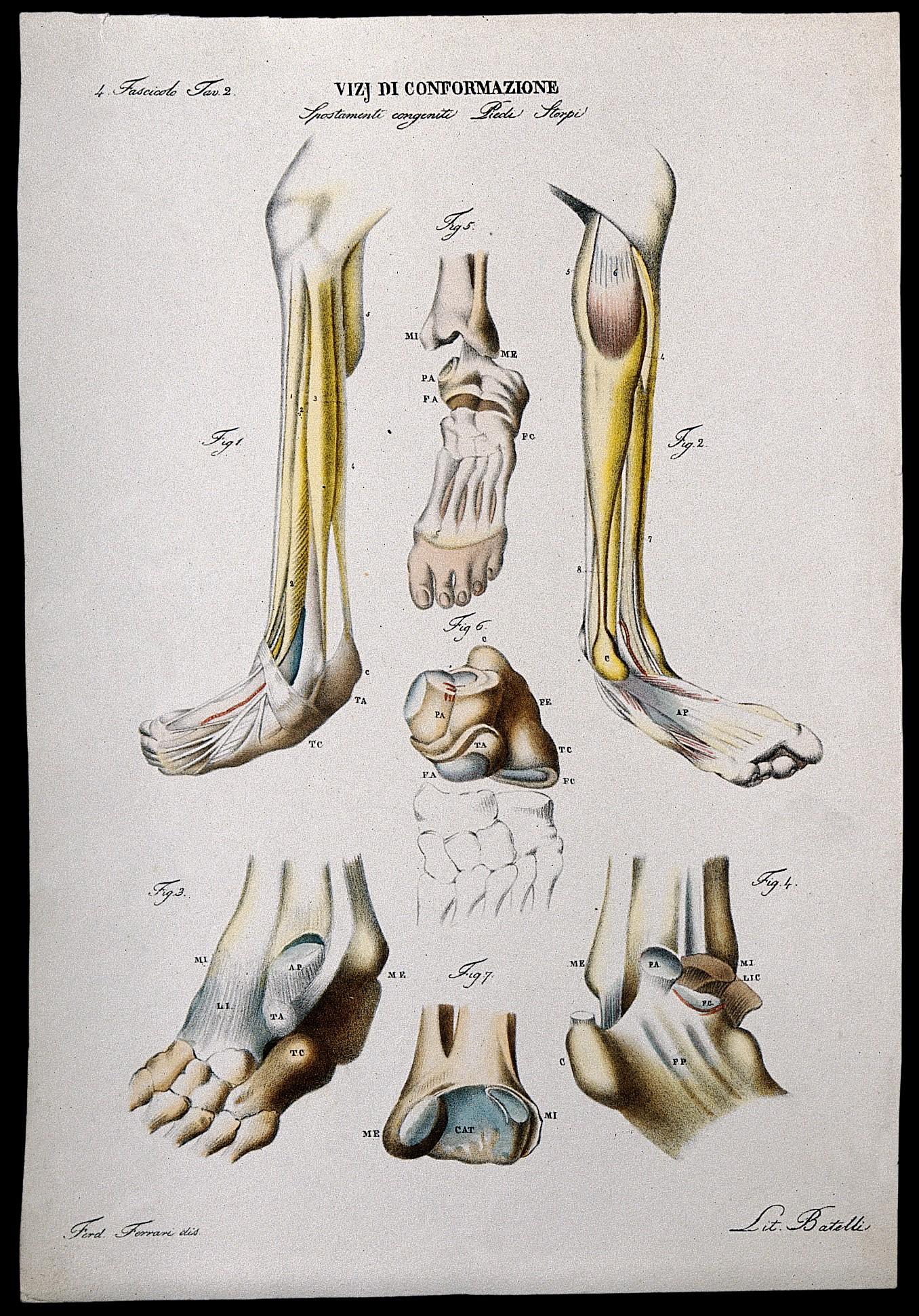 File:Examples of foot deformities; skeletal detail, numbered for ...
