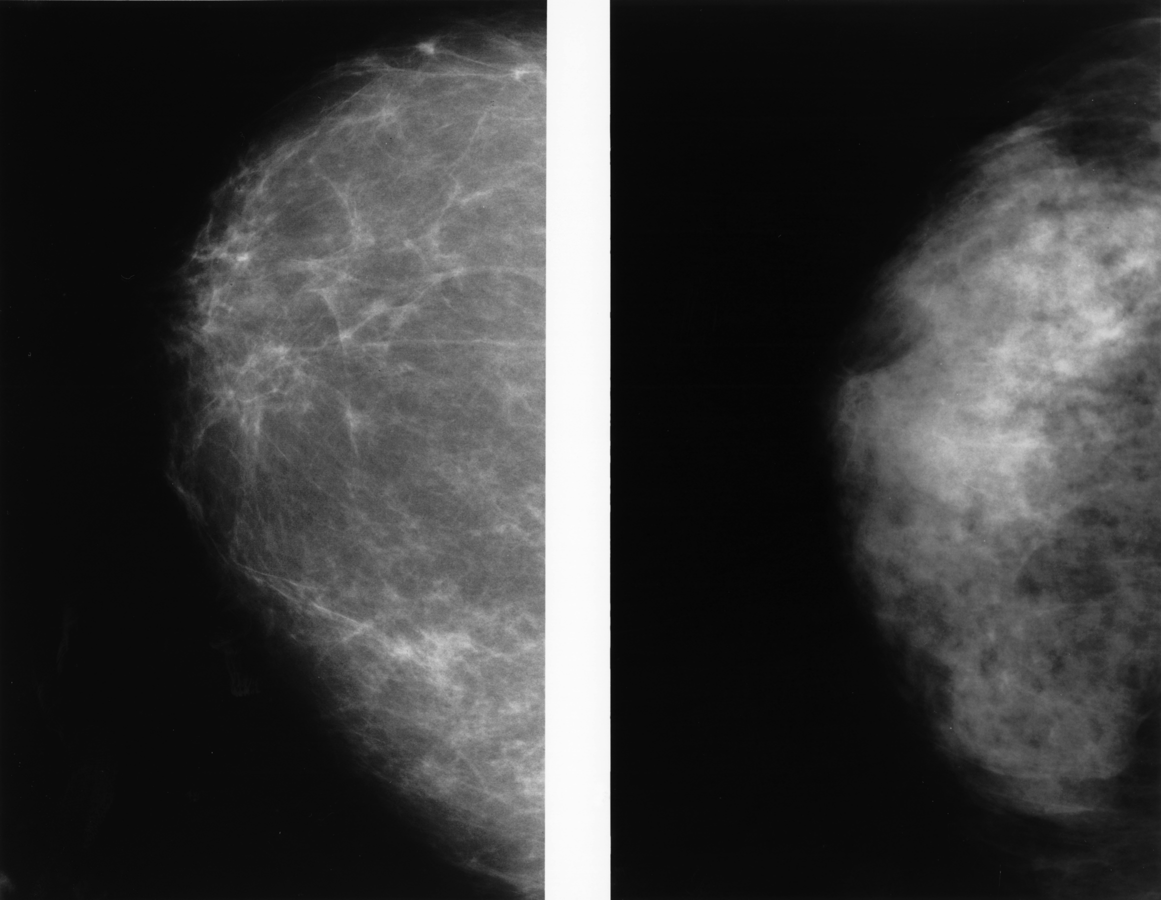 Dense breasts are heterogeneously