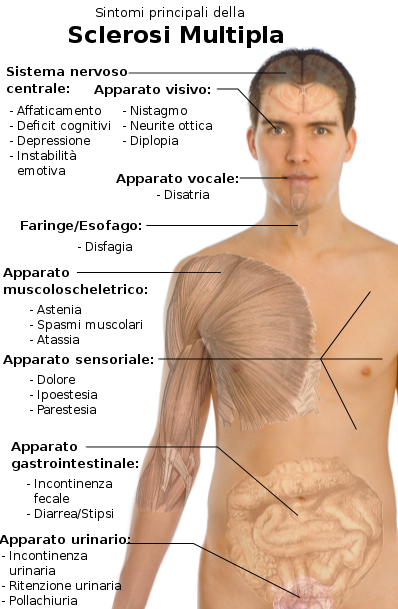 File:Symptoms of multiple sclerosis-IT.png