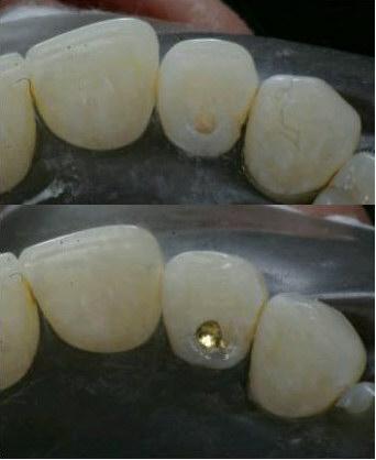 Guldfyllning i en tand.