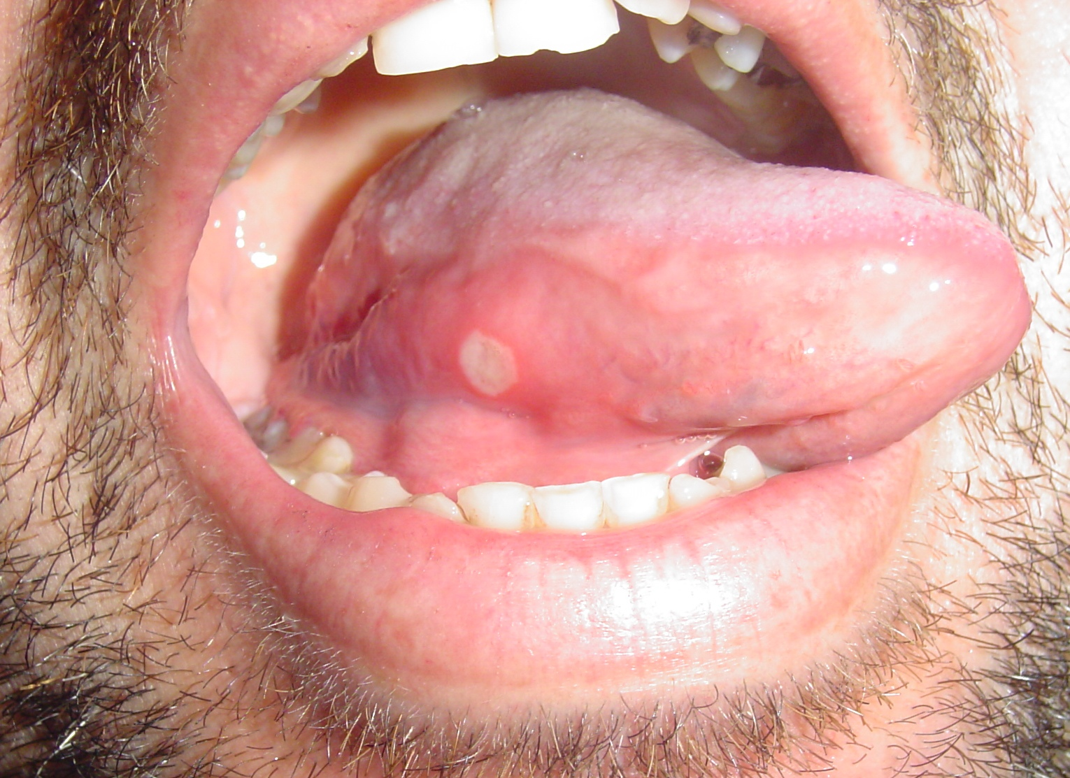 tongue ulcer treatment