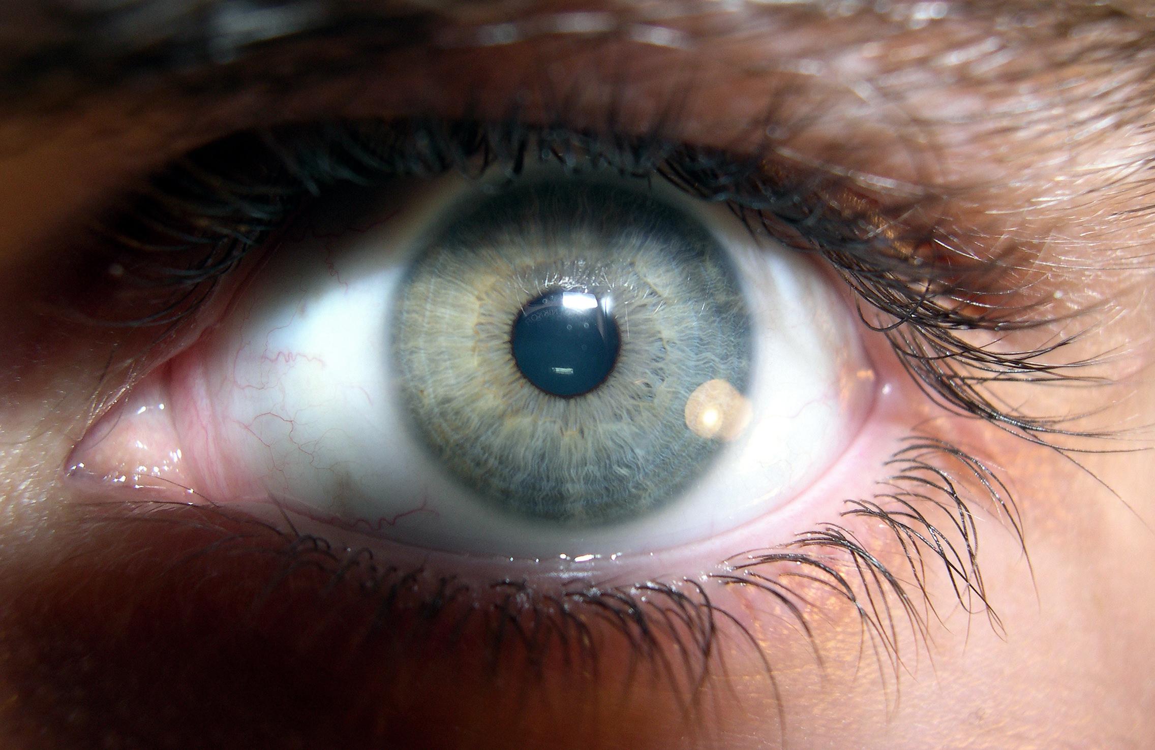 File Brown Human Eye 2 Jpg Wikimedia Commons