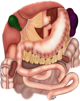 Gastric bypass surgery - Wikipedia, the free encyclopedia