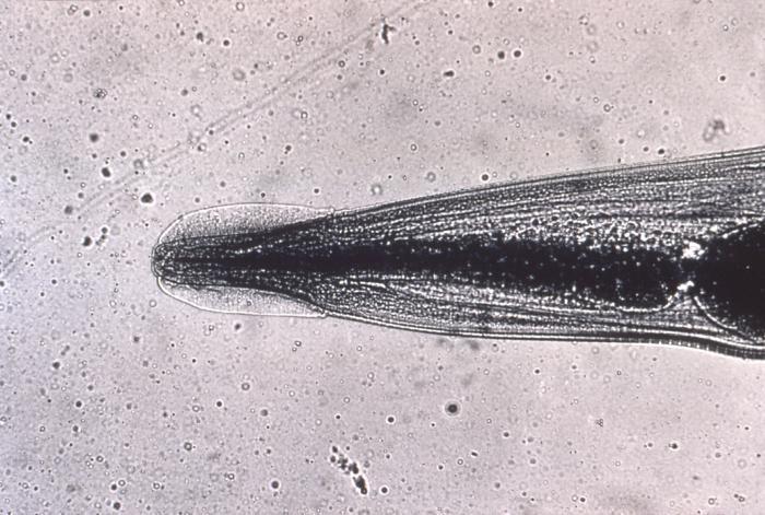 Datei:Head of Enterobius vermicularis human pinworm 5230 lores.jpg