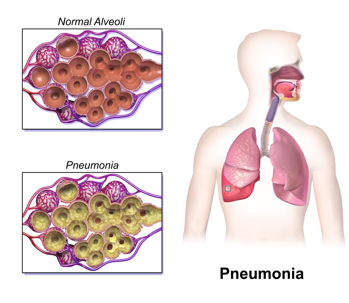 Blausen_0994_Pneumonia