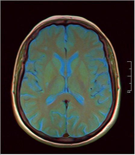 Brain MRI 0153 09.jpg