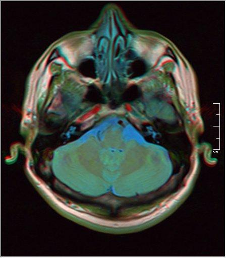 Brain MRI 0249 15.jpg