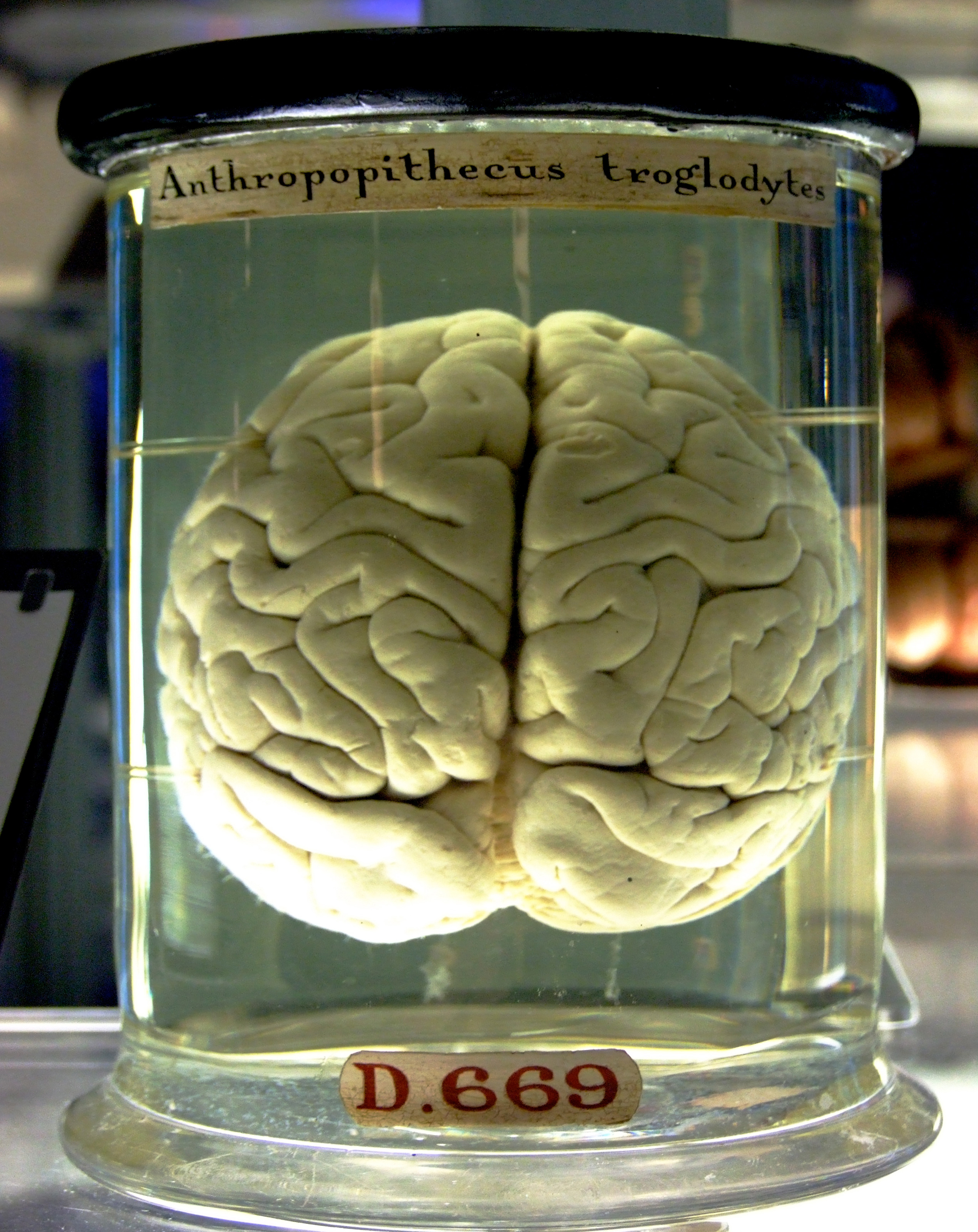 Chimp Brain in a jar Acupuncture Stimulates the Body to Heal Itself