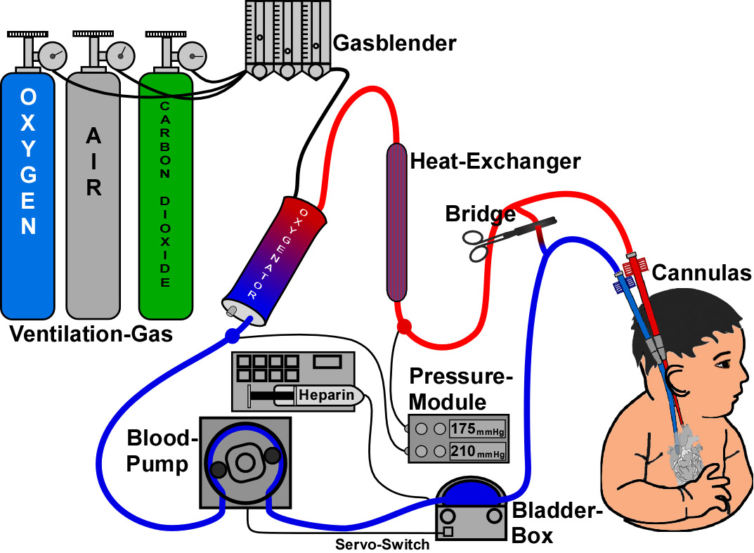 Extracorporeal Membrane Oxygenation (ECMO) Systems