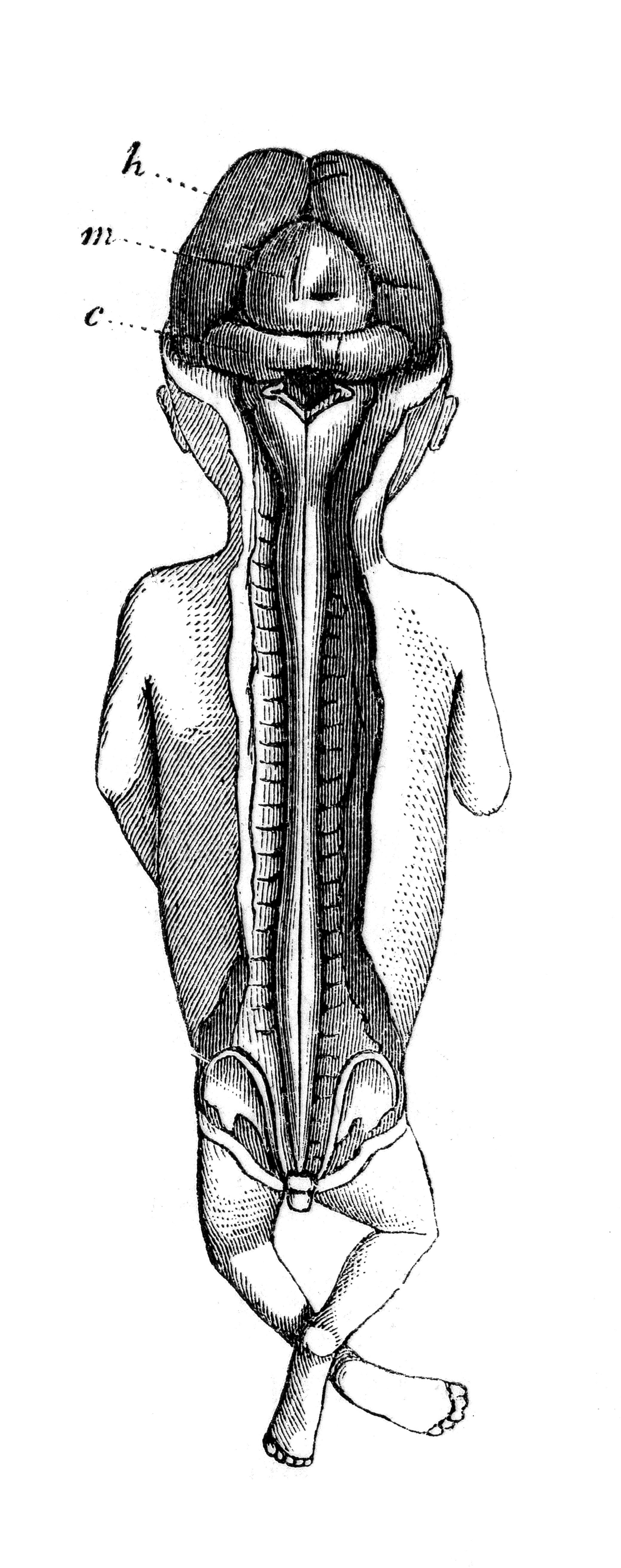 File:Embryo at three months. Brain and spinal cord exposed. Wellcome ...