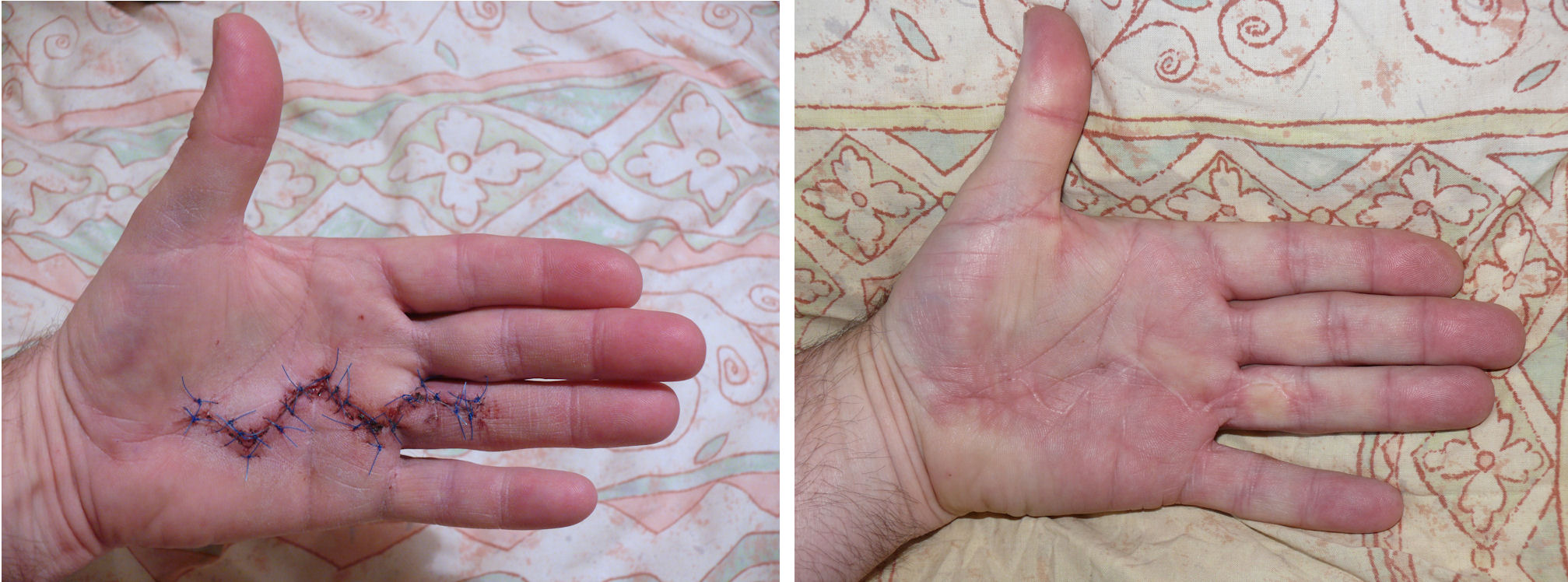 Hand Surgery Dupuytren's Contracture