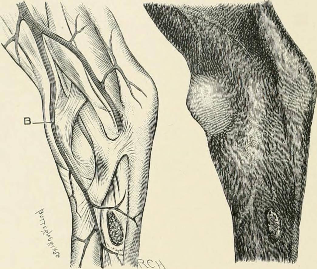 Horse Hock Anatomy Gallery - human body anatomy