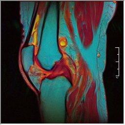 Knee MRI 0025 10 pdfs t1 t2 59f.jpg