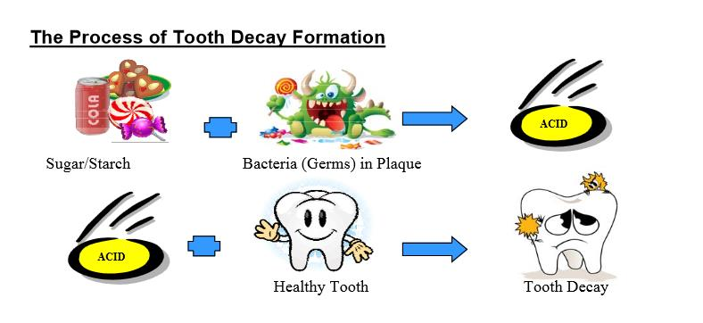 Process of tooth decay