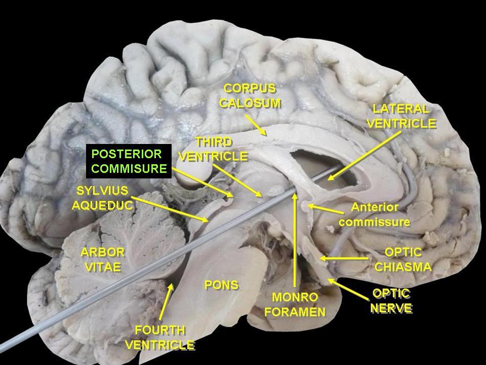 The brain, Radiology and Anatomy on Pinterest