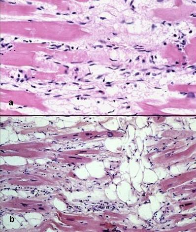 Arrhythmogenic right ventricular cardiomyopathy - histology.jpg