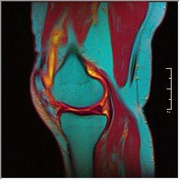 Knee MRI 0025 07 pdfs t1 t2 59f.jpg