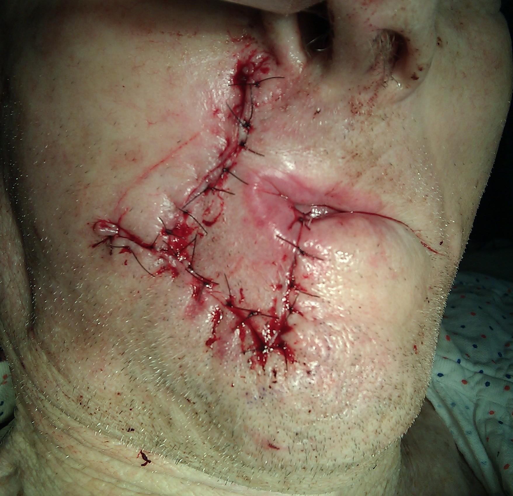 Lip reconstruction surgery uk
